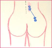 electrode above waist
